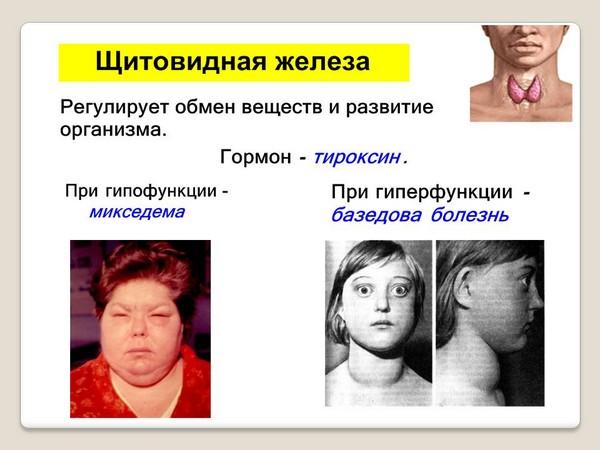 Les maladies de la glande thyroïde sont l'une des contre-indications à la procédure