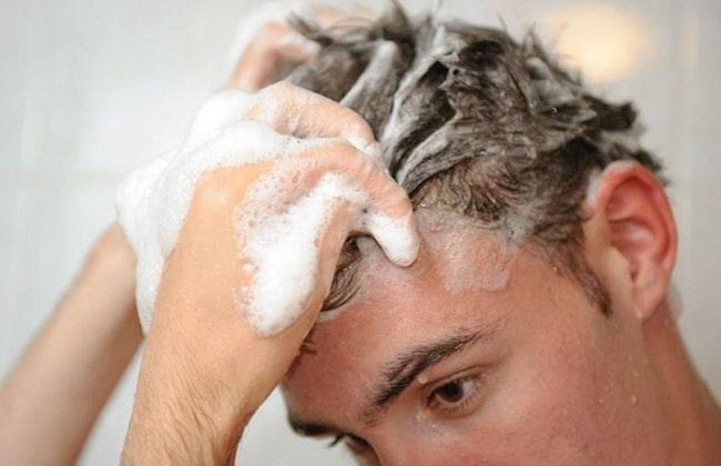 Kisilerde saç tökülmesi foto