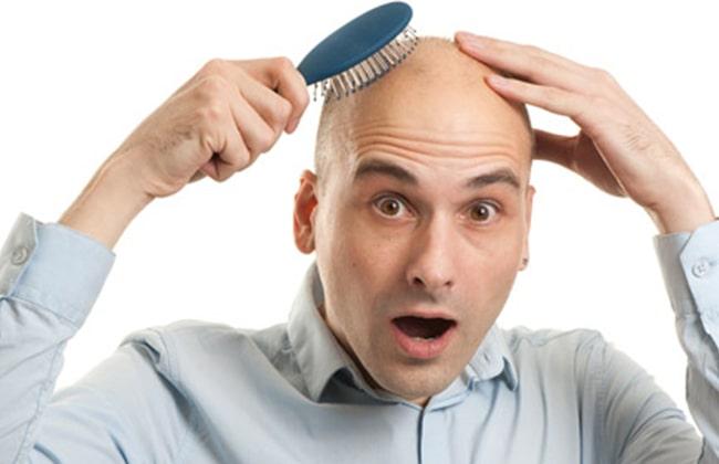 Kisilerde saç tökülmesi foto 3