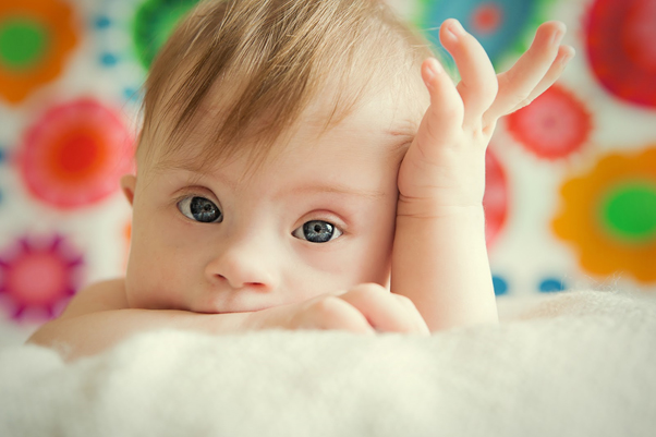 ダウン症の赤ちゃん