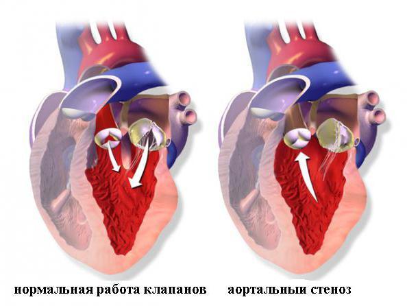 Сердечная недостаточность у кошек: виды, симптомы и лечение. Сердечная недостаточность у кошек симптомы