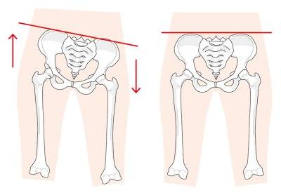 ゆがんだ骨盤と正常な骨盤