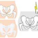 腰痛 骨盤