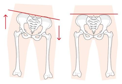 正常な骨盤とゆがんだ骨盤