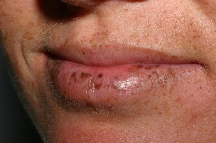 Lippe an dunkler fleck der Bluterguss an