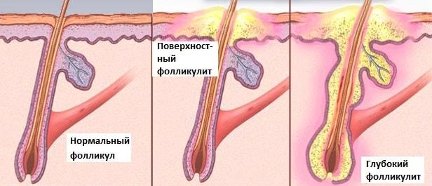 Воспаление волосяного фолликула в паху лечение. Воспаление волосяной луковицы (фолликулит), причины, лечение