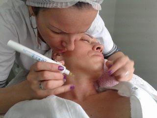 Uklanjanje bradavica-Savremeni američki metod kozmetičkog uklanjanja bradavica termokauterom