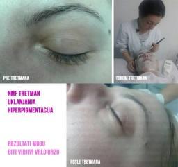 Tretman lica-Sa nastave specijalnih tretmana lica