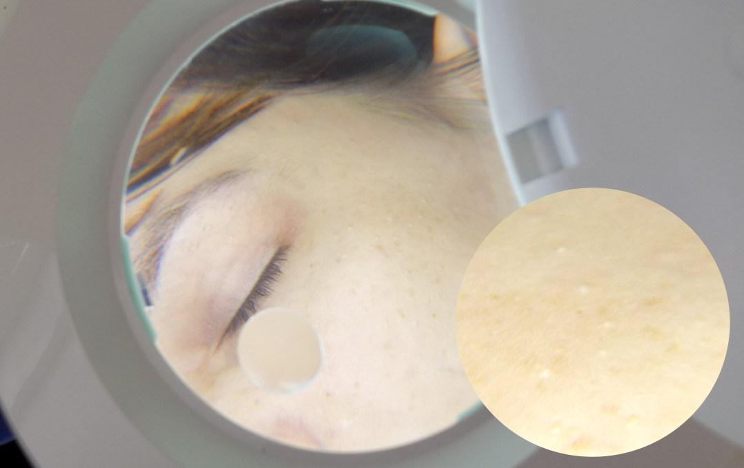 Alergija na sunce – sve što treba da znate!