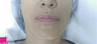 Popunjavanje nazolabijalnih brazda hijaluronskim filerima