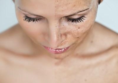 Kako nastaju hiperpigmentacije