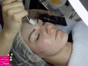 koža posle akni