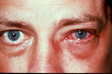 allergic-conjunctivitis-2