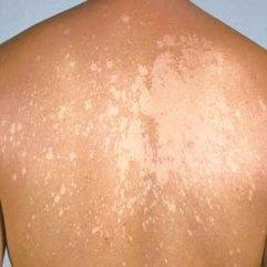 ŠTA JE PITYRIASIS VERSICOLOR? –  blaga, hronična infekcija kože