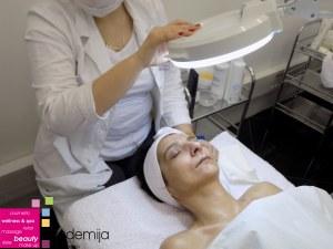 šta je dermoskopija