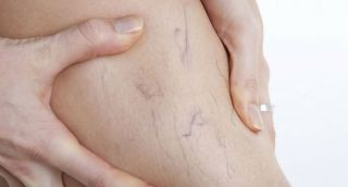 UPALA VENA NA NOGAMA I RUKAMA – simptomi i uzroci nastanka