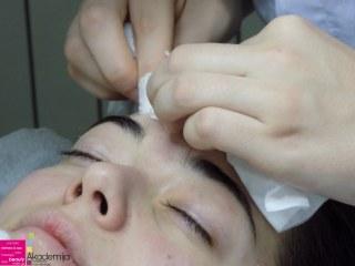KAKO NASTAJU AKNE? – nastava na kursu za profesionalnog kozmetičara