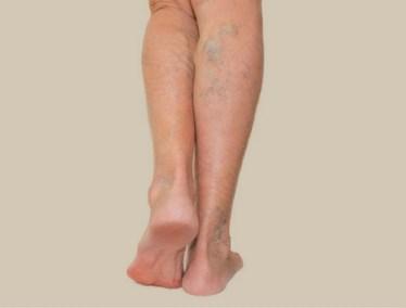 VEIN-Inflamed-veins-2