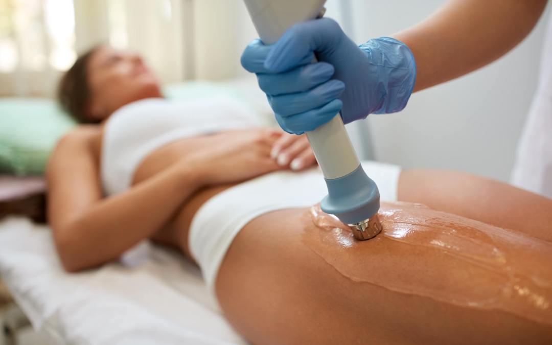 Terapija akustičnim talasima među najpopularnijim anticelulit tretmanima