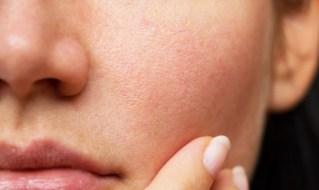 Kako na prirodan način ublažiti proširene pore