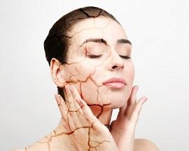 Povezanost vode i dehidrirane kože