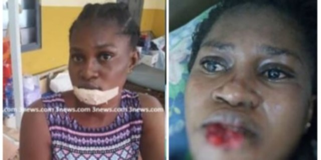 Woman bites and chews the lower lip of a 25years old girl.