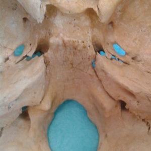 SSB + otvory kraniálních nervů