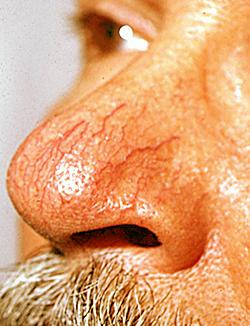 varicoză cum se tratează la etapa inițială)