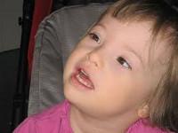 Передает ли по наследству синдром Дауна? Передается ли синдром дауна по наследству