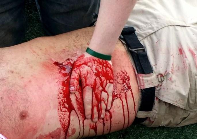 ab_bleeding