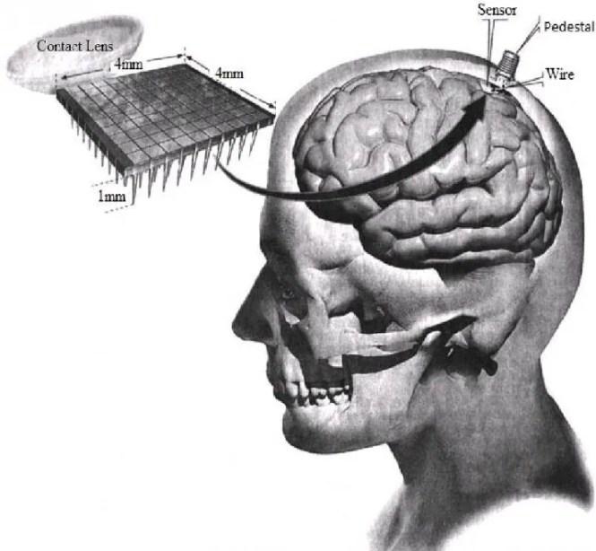 A silicon chip implanted in the brain cortex through pedestal