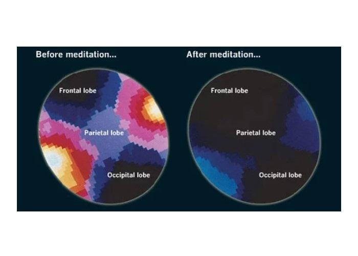 meditasi meningkatkan daya ingat
