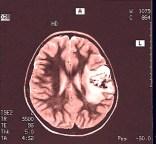 Hirntumor, Gehirnkrebs, Hirnmetastasen, Symptome, Therapie