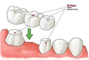 Dental bridge example