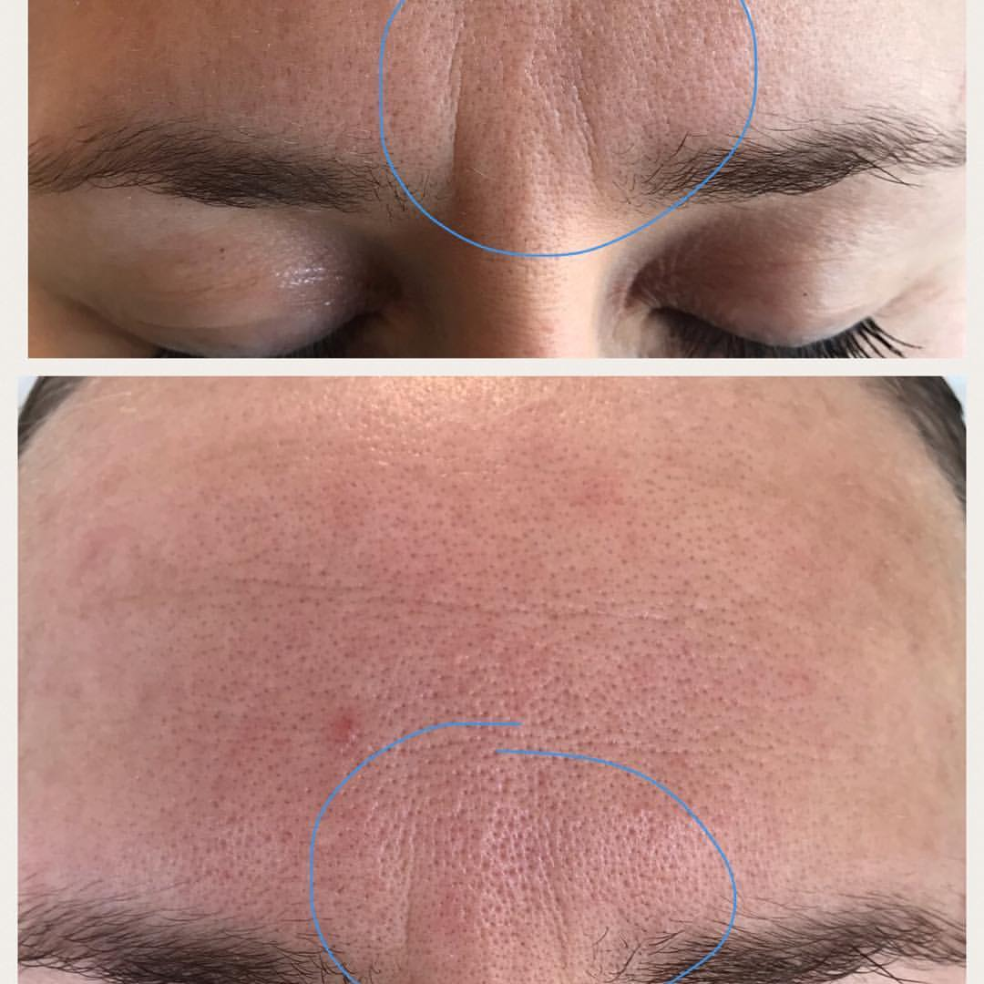 microneedling-face-1