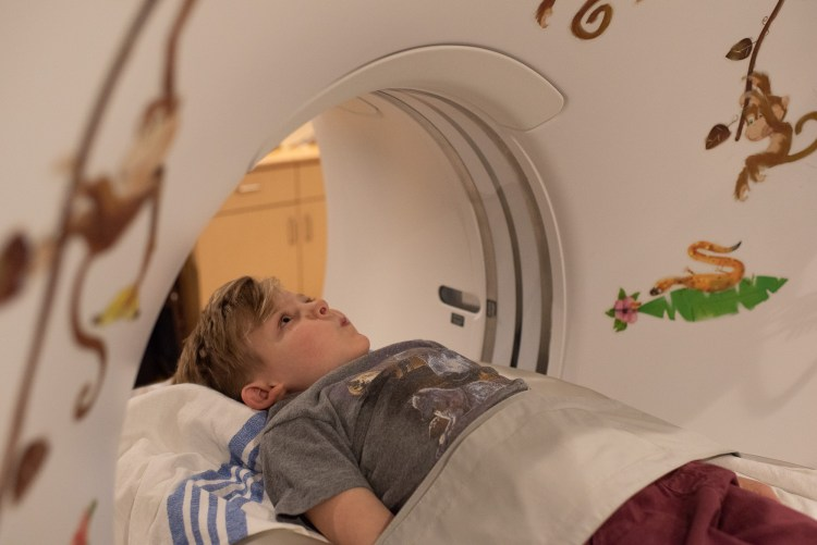 Congenital Scoliosis child having a CT scan at the Alberta Children's Hospital.