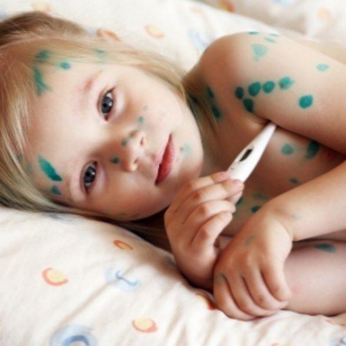 Liečba papillomy u dieťaťa