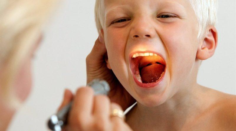 Лазерная аденотомия у детей