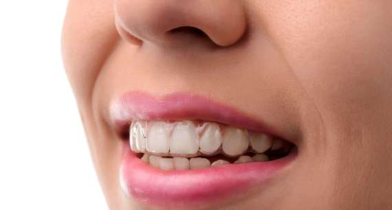 About Invisalign Part 2