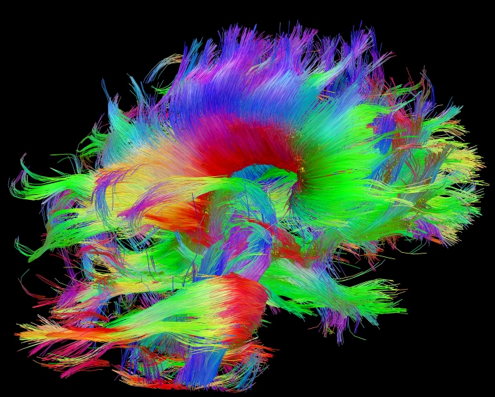 How To Apply Brain Science Of >> Apply To Attend Frontiers Of Brain Science The Kavli