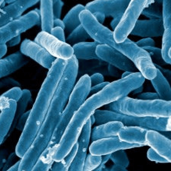 A scanning electron micrograph of Mycobacterium tuberculosis bacteria, which cause tuberculosis, is pictured. (Credit: NIAID / Flickr via Creative Commons)