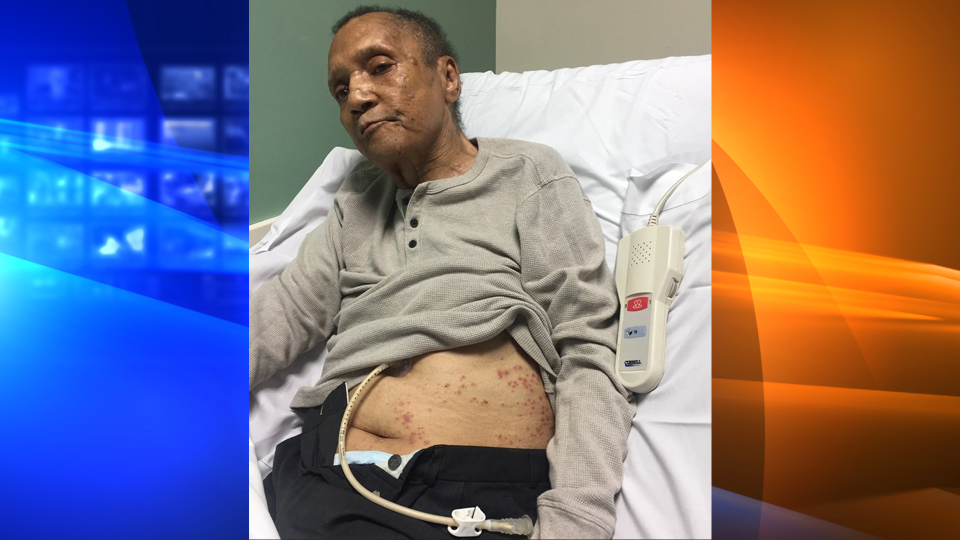 Joel Marrable was twice found covered in ants days before he died in a veterans assisted-living facility in Atlanta. (Credit: Courtesy Laquana Ross)