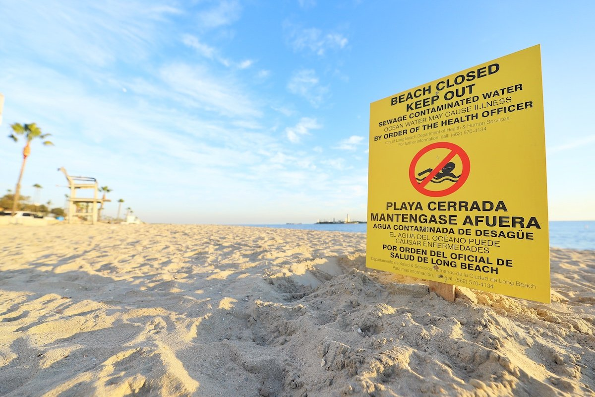 A sign warning swimmers of contaminated water is seen in Long Beach in a photo posted by the City of Long Beach on Jan. 13, 2020.