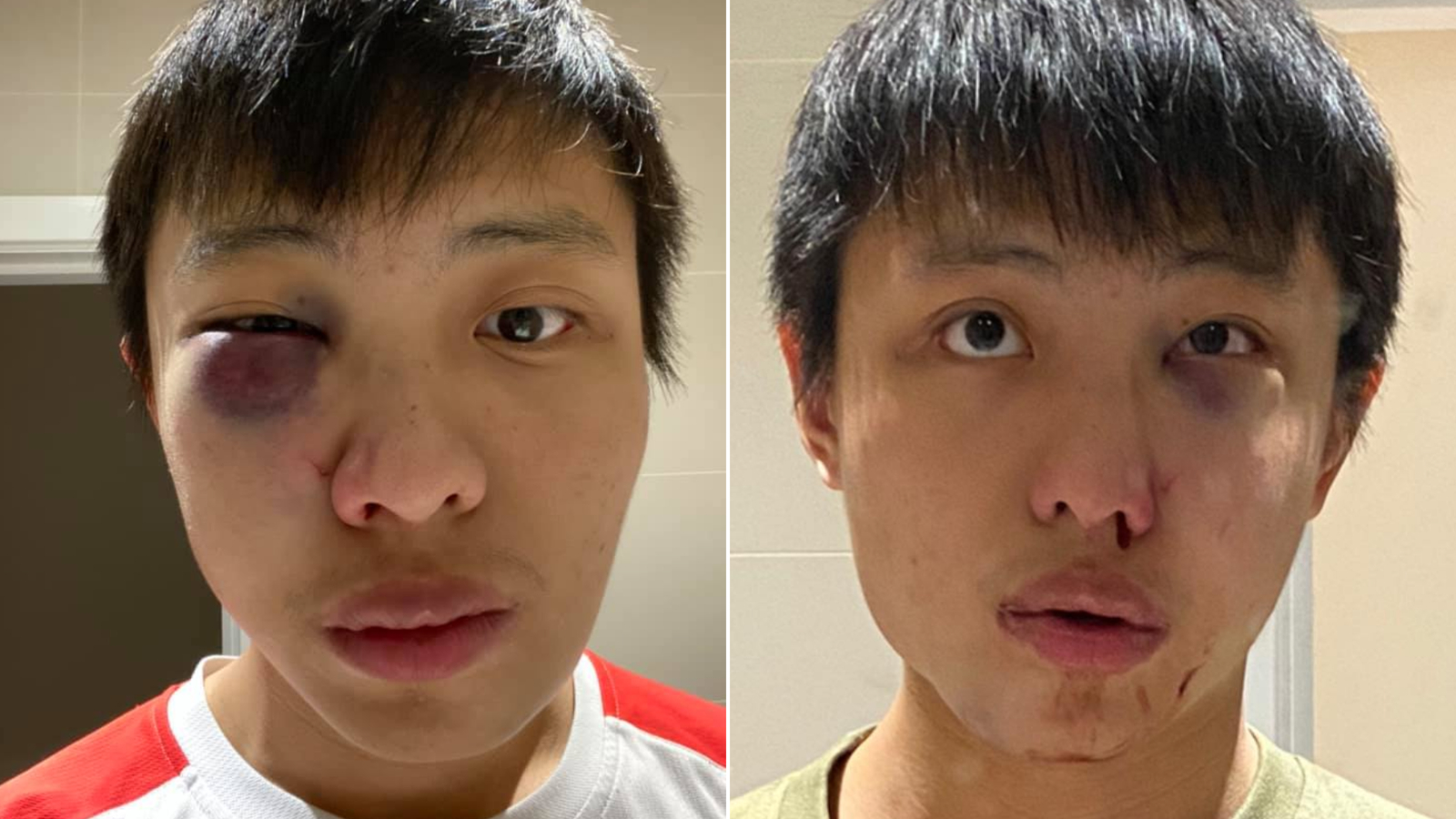 Jonathan Mok, a Chinese student, said he was attacked in London. (Jonathan Mok/ Facebook via CNN)