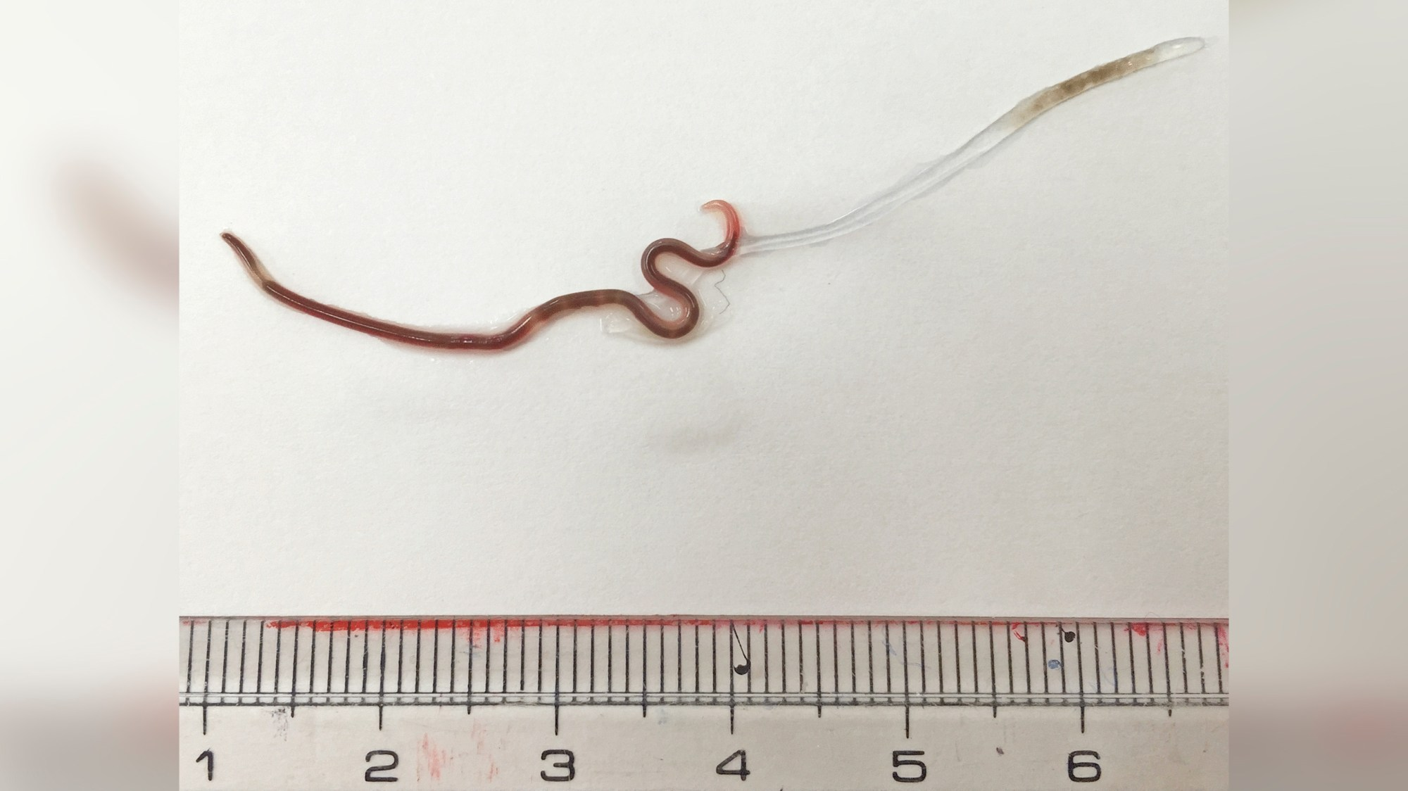 The worm found in the woman's tonsil was 1.5 inches long. (The American Journal of Tropical Medicine and Hygiene)