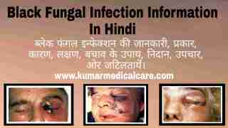 Black Fungal Infection information in Hindi