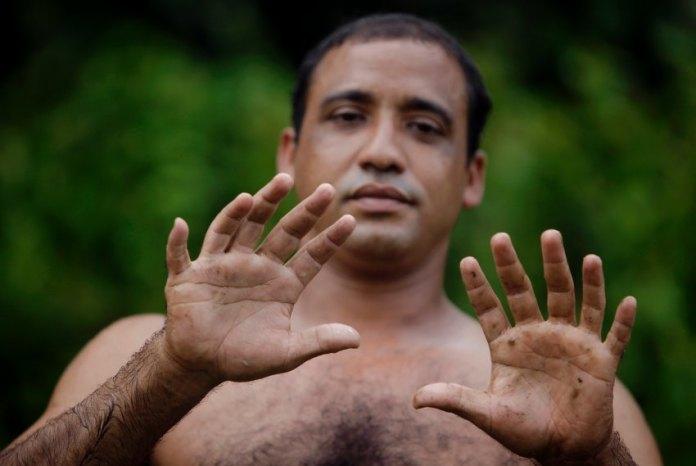 24 пальца Эрнандеса Гарридо