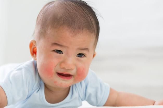 penyakit kulit bayi