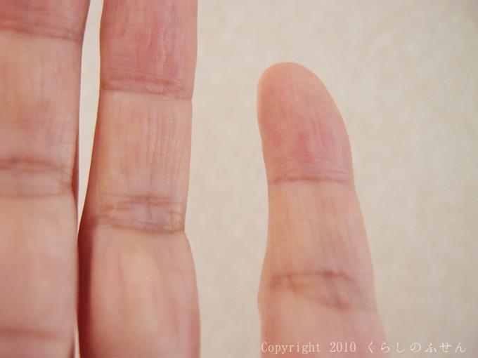 【画像あり】ついに汗が止まった!デトランスα手足用使用23日目