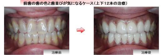 ジルコニア症例4 前歯の歯の色と歯並びが気になるケース(上下12本の治療)
